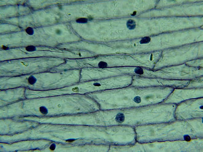 Microscope-LCD-Epidermis-Onion-1